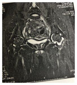 股関節痛の原因は・・・!
