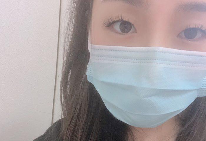 大腿骨頭壊死症 入院 1日目